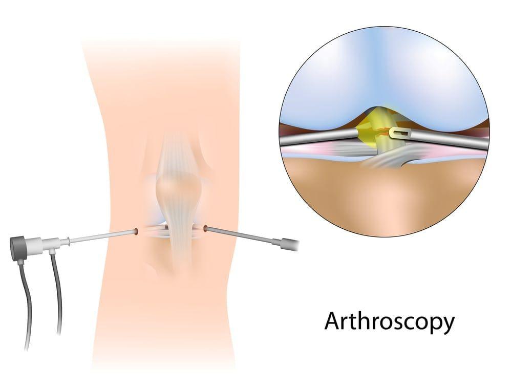 infographic arthroscopy
