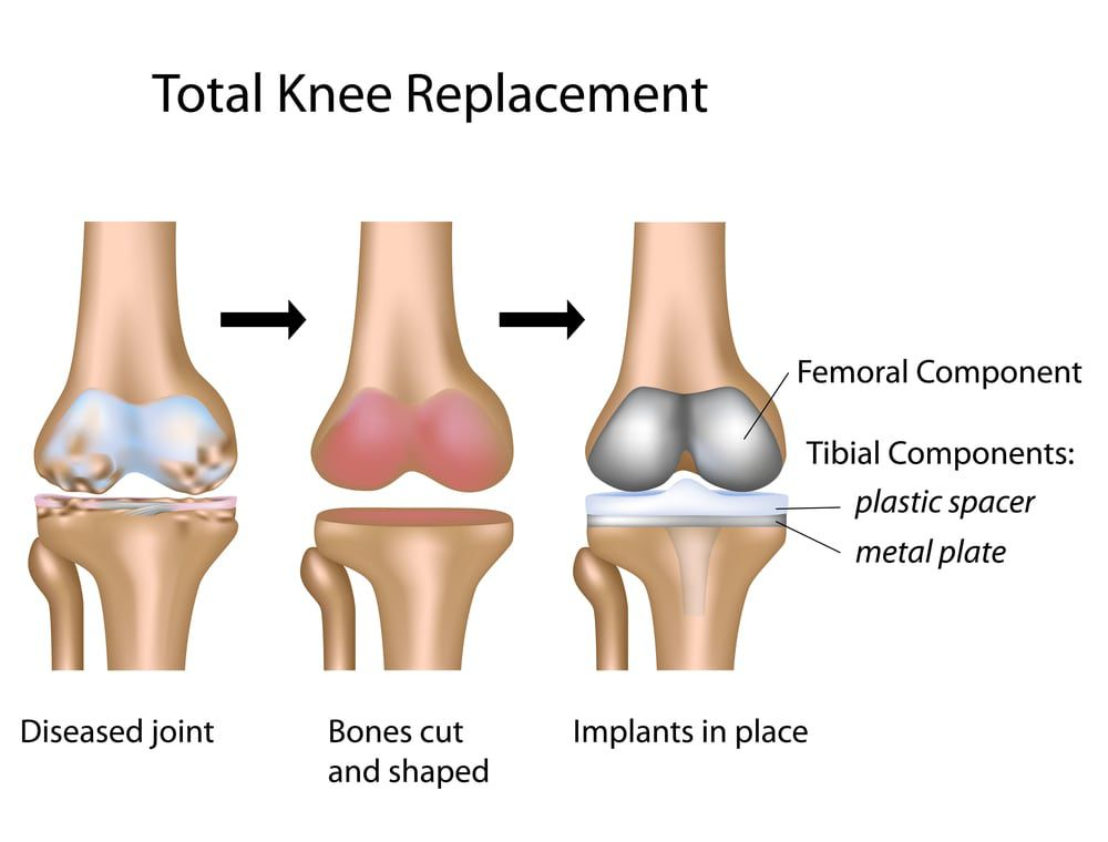 infographic total knee replacement