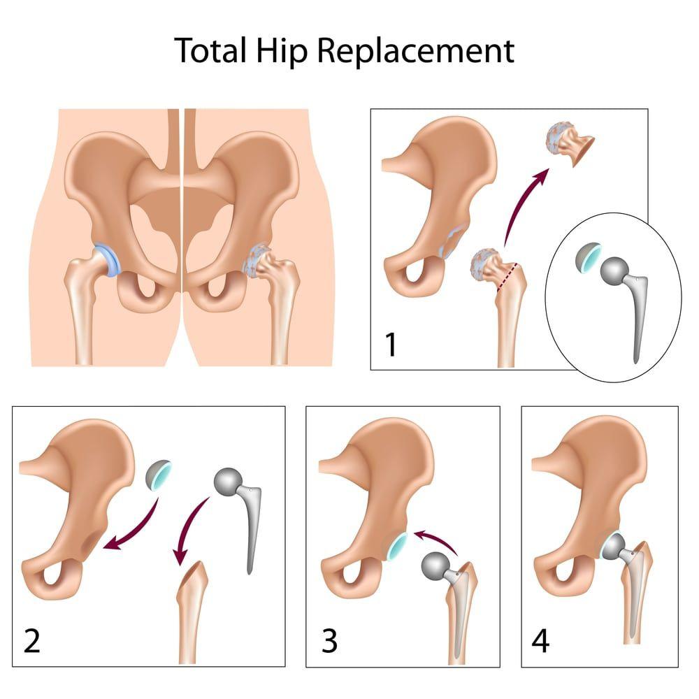 infographic hip replacement procedure illustration